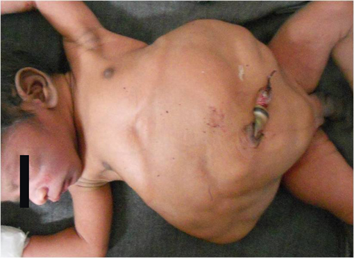 Colonic enema belly inflation - 1 1